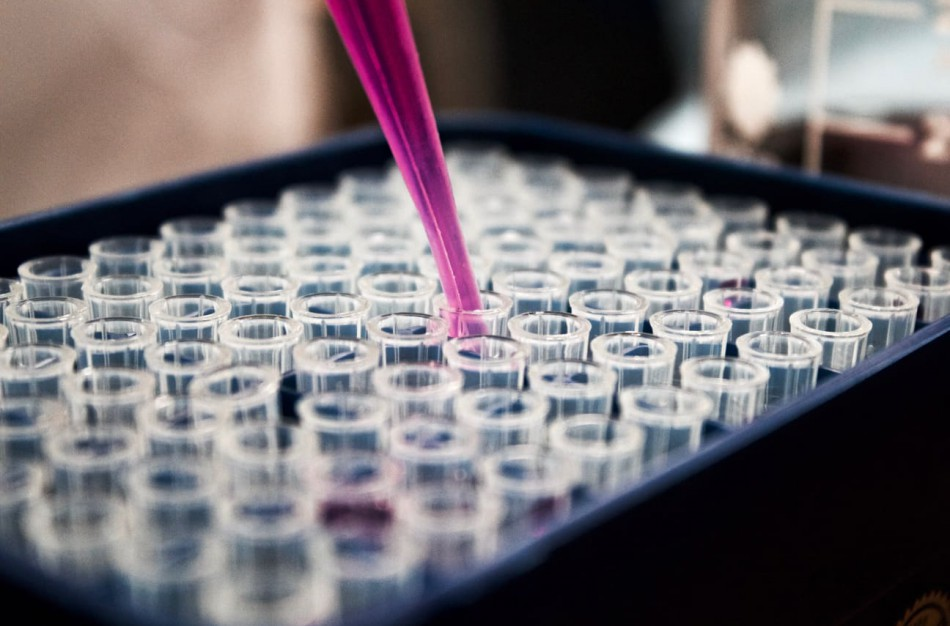 Skelbimuose siūloma parduoti spermą: tai nelegalu. Kokie pavojai?