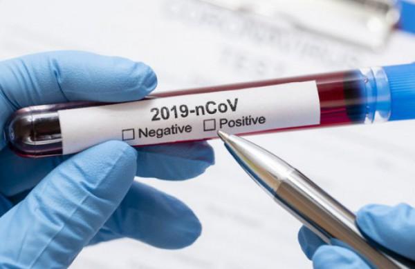Praėjusią parą Lietuvoje registruoti 897 koronaviruso atvejai
