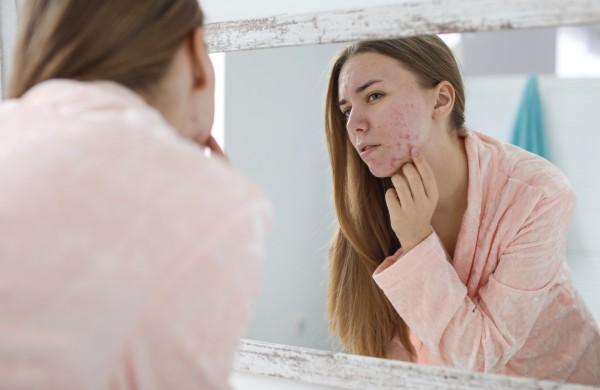 Kosmetologė atskleidė, kokia veiksmingiausia priemonė kovoje su akne namų sąlygomis