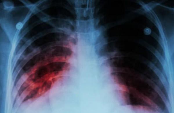Pernai tuberkulino mėginiai padėjo išaiškinti 8 tuberkulioze sergančius vaikus