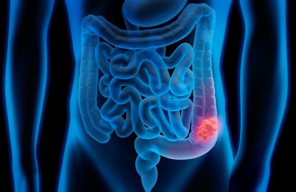 Kolorektalinis vėžys: gerai užsimaskavusi liga, apie kurią kalbėti būtina
