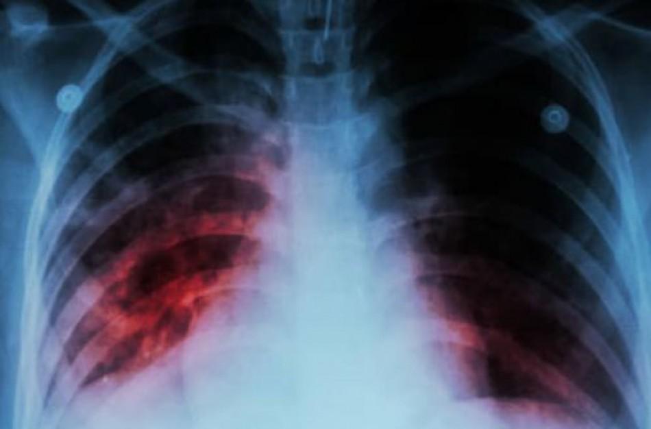 ,,Laikrodis tiksi'' – Pasaulinė tuberkuliozės diena