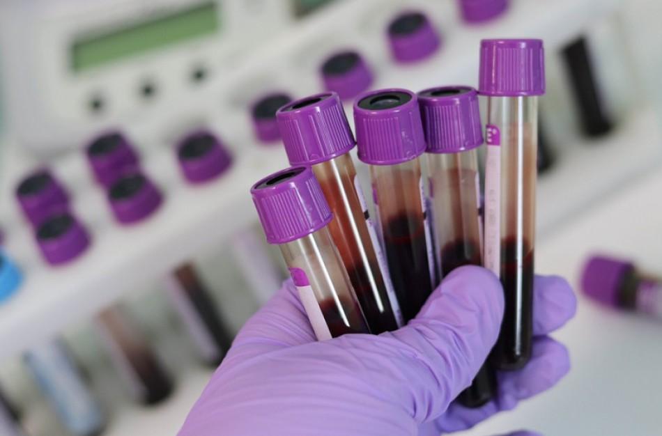Rekomenduoja pasitikrinti dėl ŽIV ir hepatitų