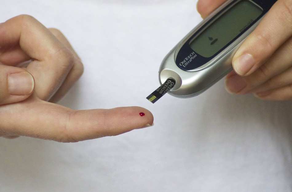 Kardiologė apie cholesterolį: liekni ir sveikai gyvenantys žmonės taip pat neapsaugoti nuo jo padidėjimo
